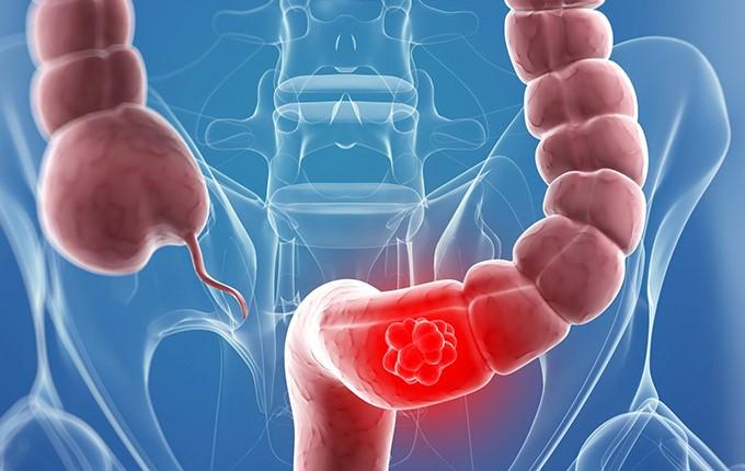 Cách điều trị bệnh hội chứng ruột kích thích 1