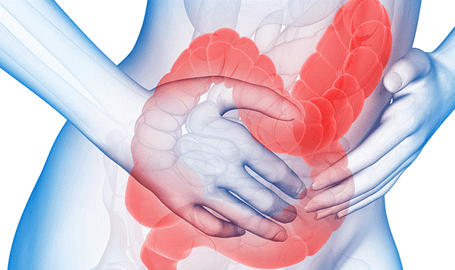 Hội chứng ruột kích thích, nguyên nhân, dấu hiệu và phòng ngừa 1