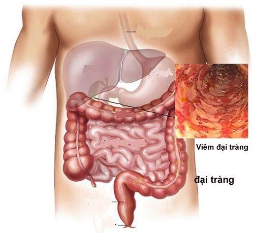 Hội chứng ruột kích thích và cách điều trị 1