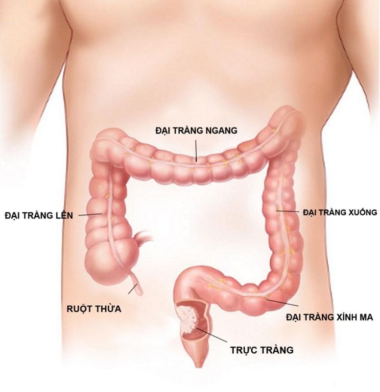 7 Triệu chứng viêm đại tràng co thắt bạn cần phải biết