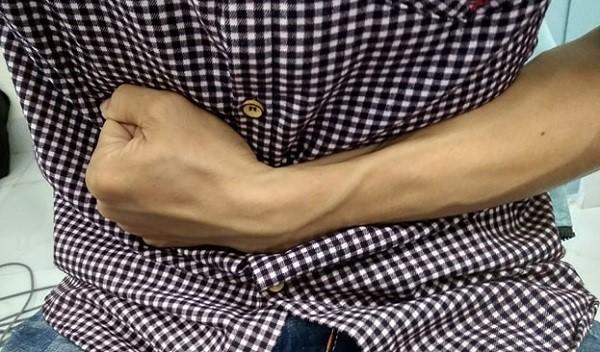 Triệu chứng của bệnh viêm đại tràng co thắt 1
